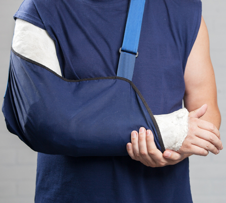 Fractured and broken bone compensation guide