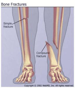 Broken bone claims.