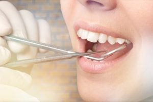 dental negligence compensation claims