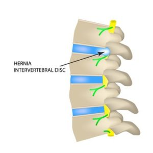 herniated disc claims