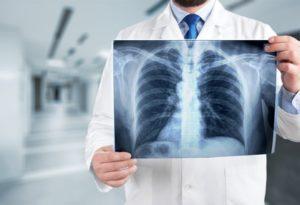 Emphysema compensation claims