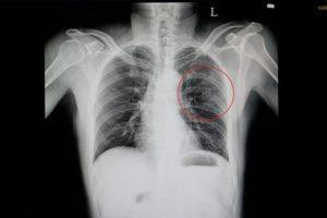 Rib injury claim