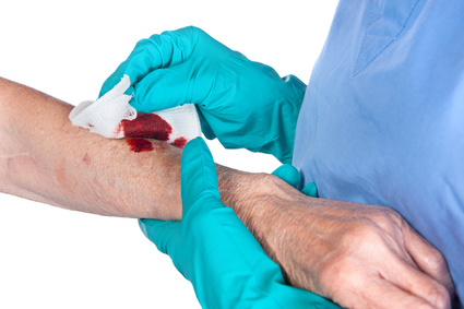 laceration and scarring claims