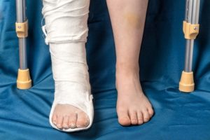 Compensation For A Fractured Leg