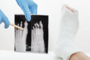 Compensation For A Foot Fracture