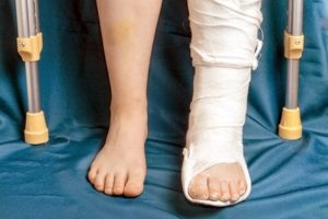 Broken leg at work