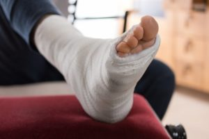Broken metatarsal injury