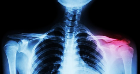 40,000 Compensation Payout For Fractured Collarbone At Work