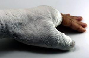 Broken wrist compensation