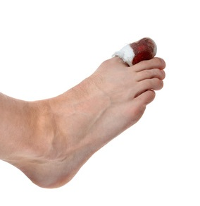 Compensation for fractured big toe