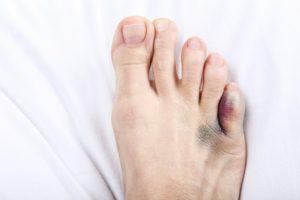 Little toe fracture compensation