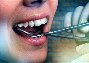 Wrong tooth extraction