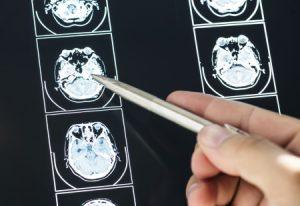 brain injury compensation