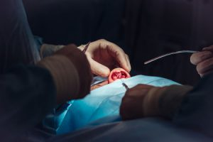 cosmetic surgery compensation and negligent cosmetic surgery claims.