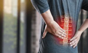 Cauda Equina Syndrome compensation claims guide