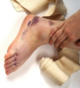 Medical negligence claim for a missed ankle fracture guide