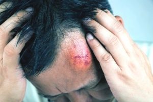 Victim of GBH compensation claims guide