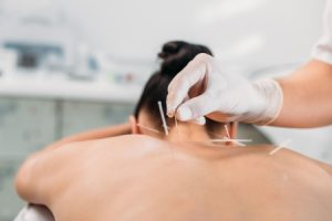 Acupuncture negligence injury claims